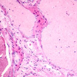 benign liver tumour